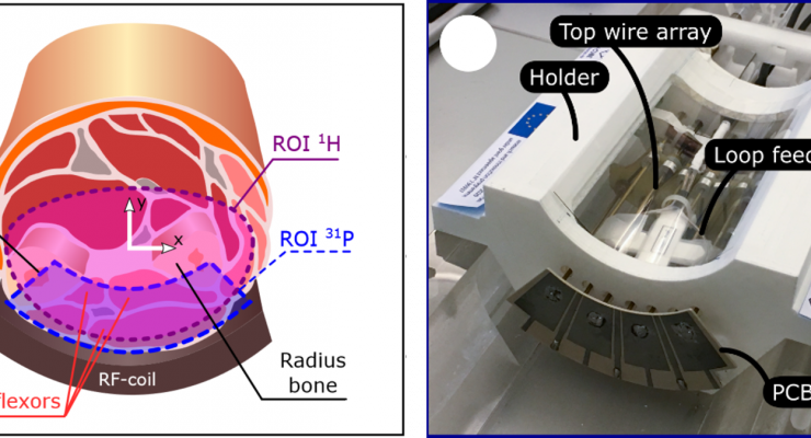Radiofrequency coil for dual-nuclei MR muscle energetics investigation based on two capacitively coupled periodic wire arrays