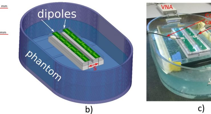 A Parametric Study of Radiative Dipole BodyArray Coil for 7 Tesla MRI